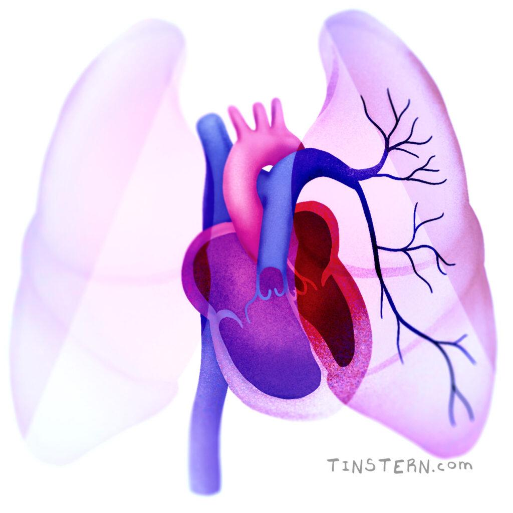 ilsutración para Sociedad Argentina de Cardiología Insuficiencia Cardiaca